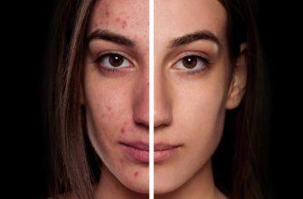 Как сделать гладкую кожу в Photoshop