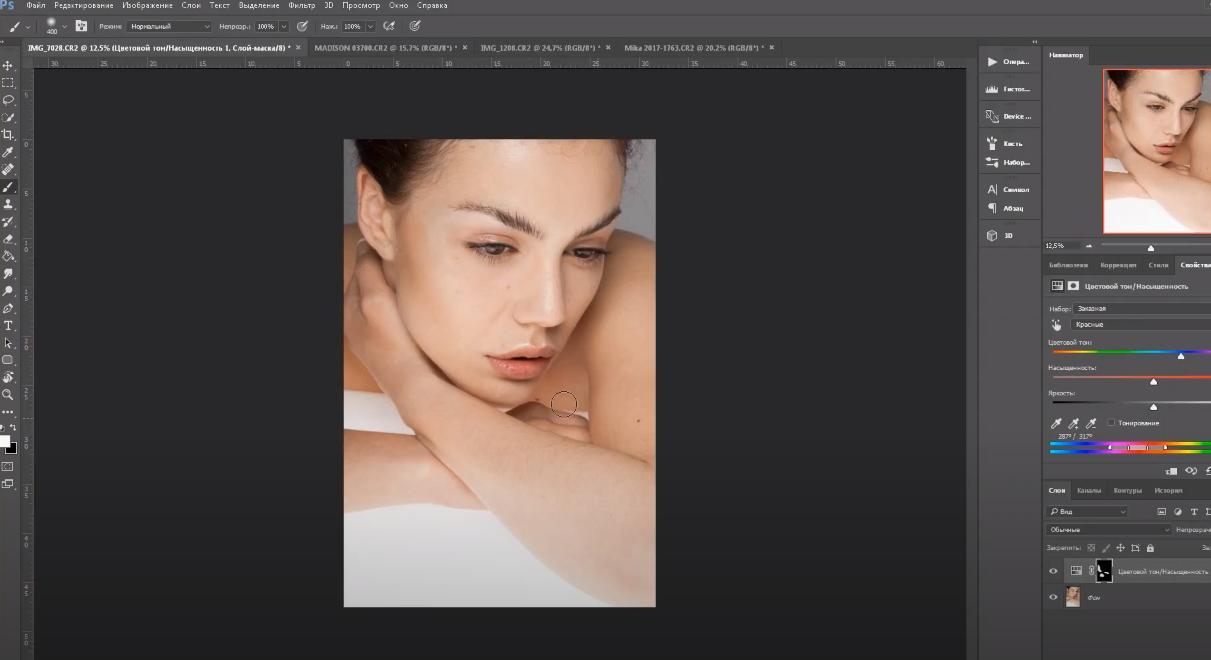 пигментные пятна в Photoshop
